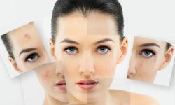 Top 5 kem trị mụn hiệu quả nhất hiện nay cho các bạn nữ 37