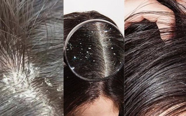 Some important notes when using dandruff shampoos
