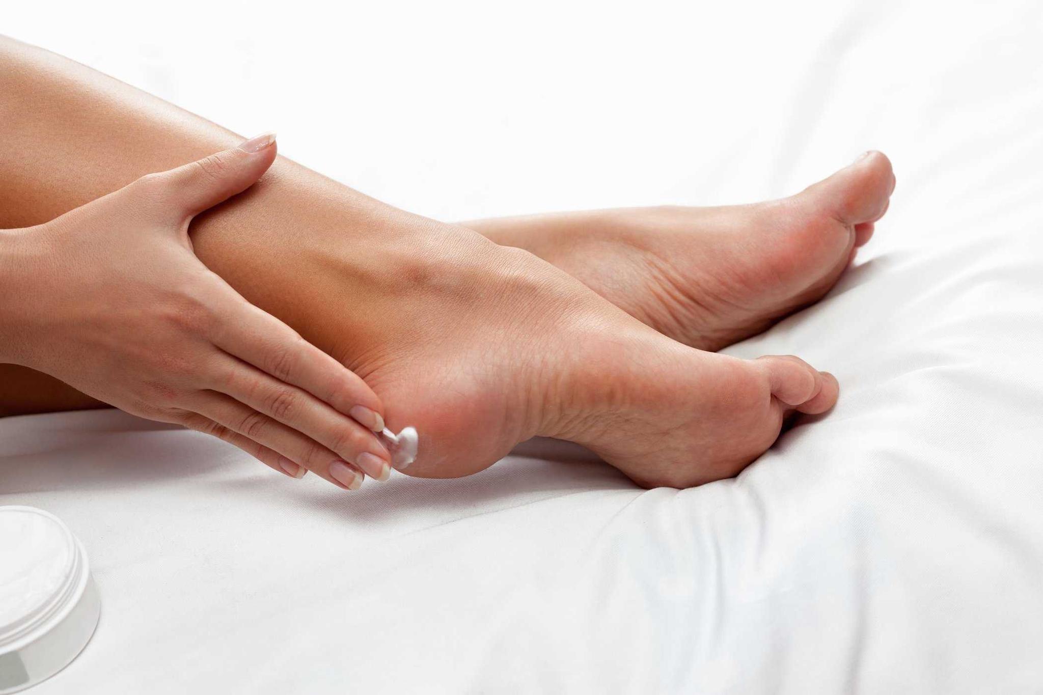 Cách sử dụng kem trị nứt gót chân