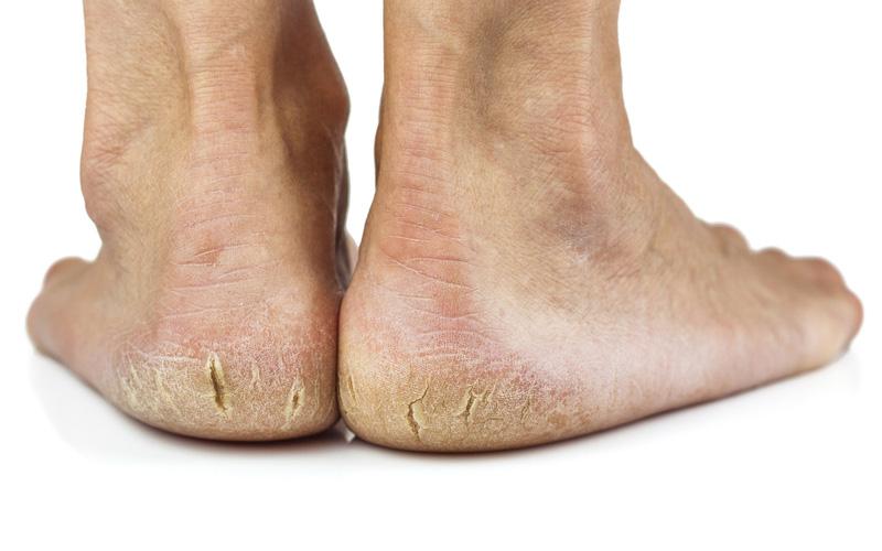Nguyên nhân dẫn đến tình trạng nứt gót chân