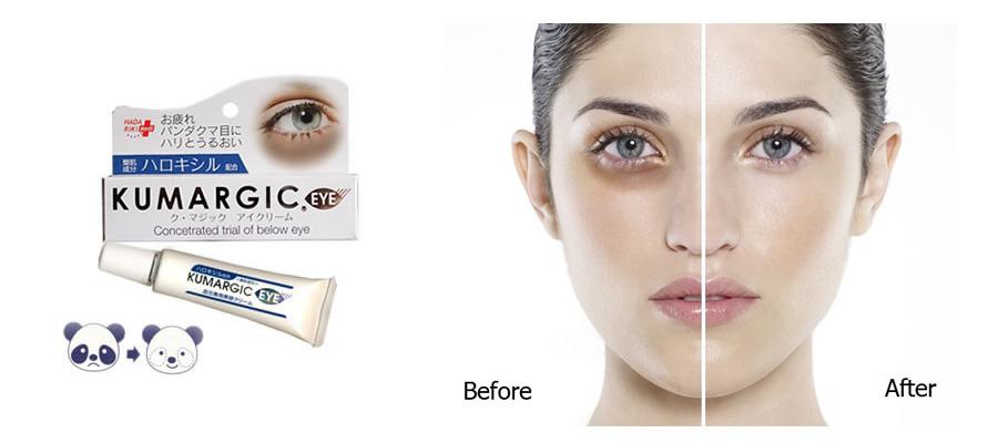 Cách chọn kem trị thâm mắt tốt