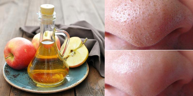 Cách làm se khít lỗ chân lông bằng giấm táo