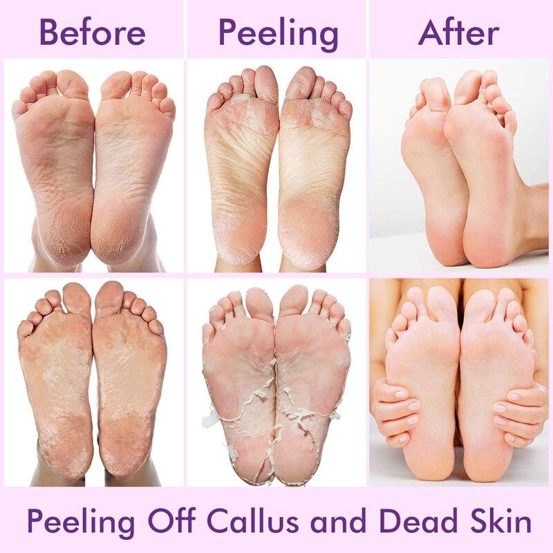 Cách chọn mặt nạ dưỡng da chân