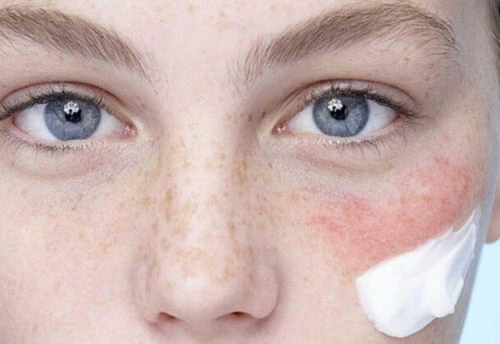 Tại sao phải sử dụng kem chống nắng cho da nhạy cảm
